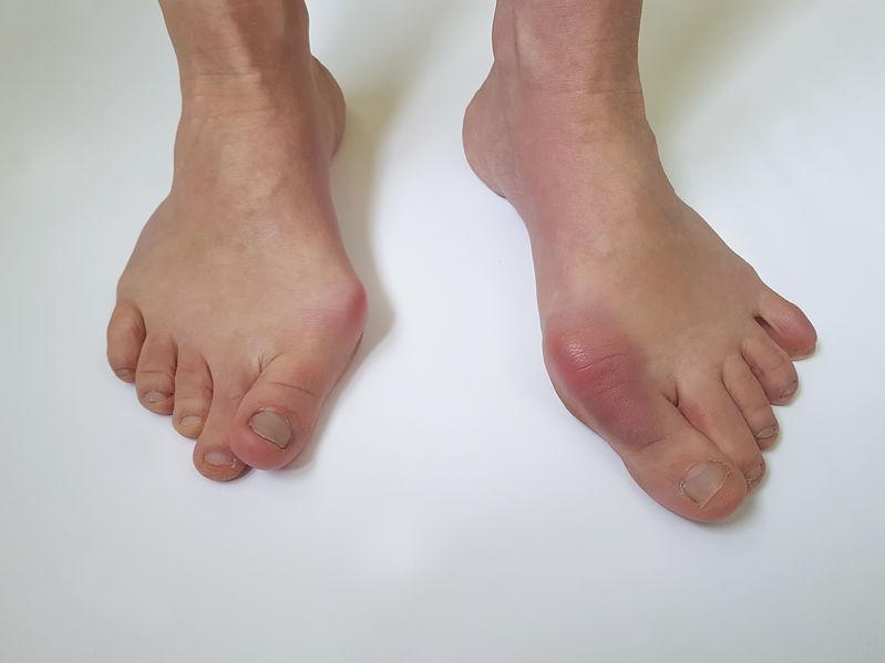 imagen de unos pies con juanetes