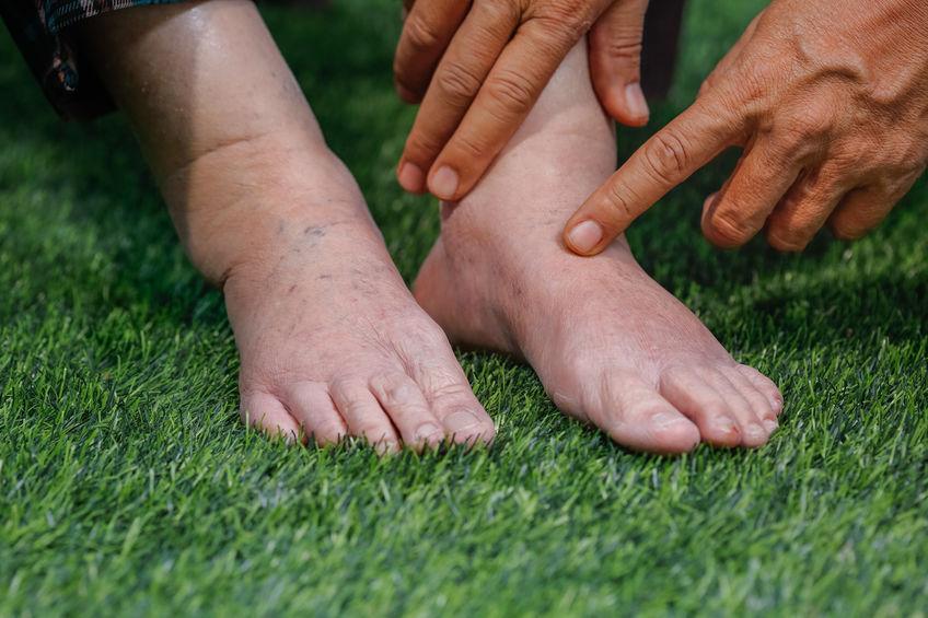 imagen de los pies de una persona mayor donde se aprecia que tiene la pierna y tobillos hinchados