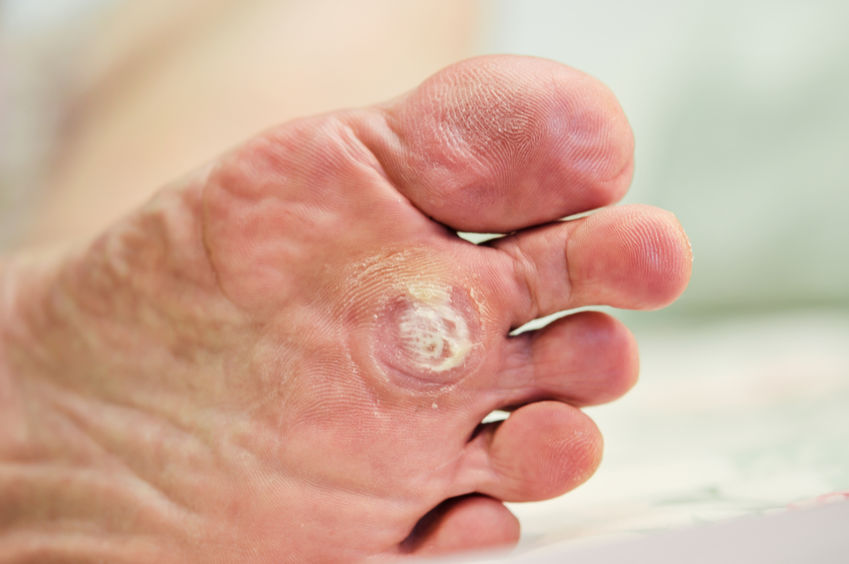 imagen del pie de una persona mayor con una verruga plantar
