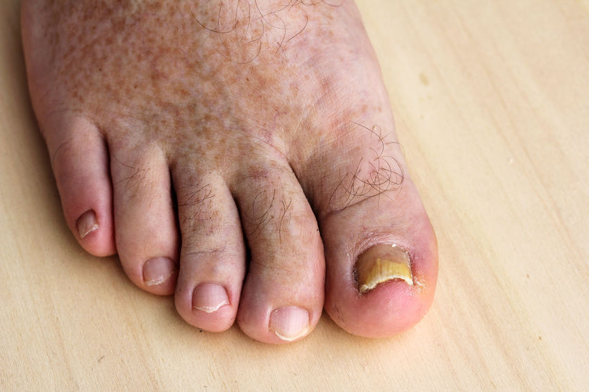 imagen de unas uñas con Uñas con onicomicosis